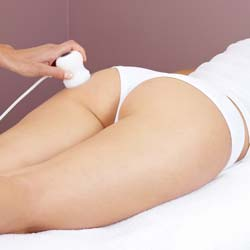 Revolutionary New Cellulite Treatment