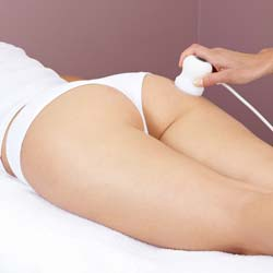 Cellulite Treatment through Acoustic Wave Therapy