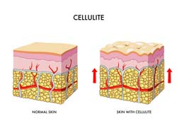 Treatment Of Cellulite Through Liposome Delivery Systems