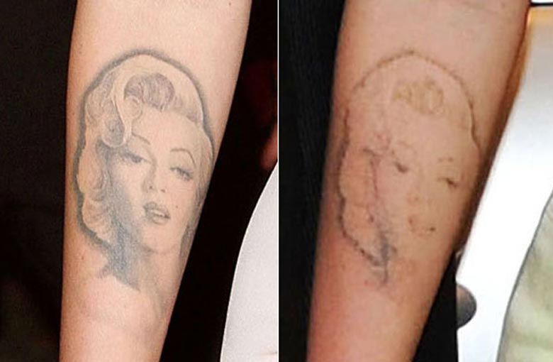 Megan before/after tattoo