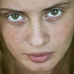 how to get rid of freckles with makeup