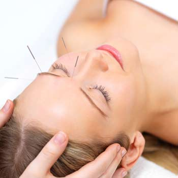 Acupunture therapy