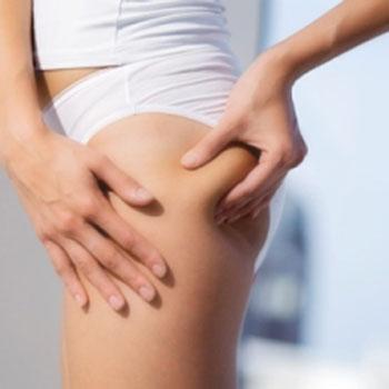 Preventing Cellulite