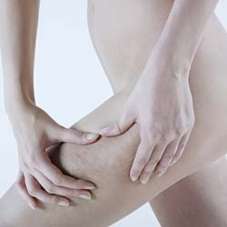 The 3 Main Causes of Cellulite