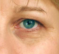 causes of dark circles under eyes - pictures, photos