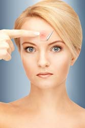 Relief from Wrinkles and Age Spots