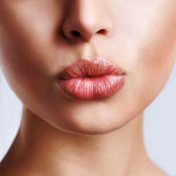 How to Have 'Bee Stung' Lips Naturally?