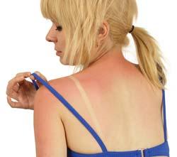 Natural Ways to Treat Sun Damaged Skin