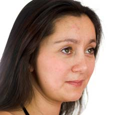 Reasons of Acne After Menopause