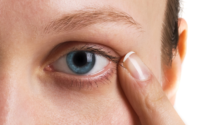 The Myth of Genetic Dark Circles Under The Eyes