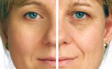 Remove Dark Circles: 3 Popular Remedies to Fix Awful Raccoon Eyes