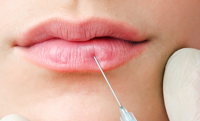 Lip Plumping Injections