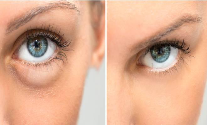 Eye Bags Removal Cream