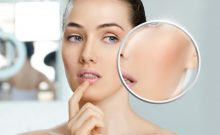 Steps to Eliminate Upper Lip Wrinkles