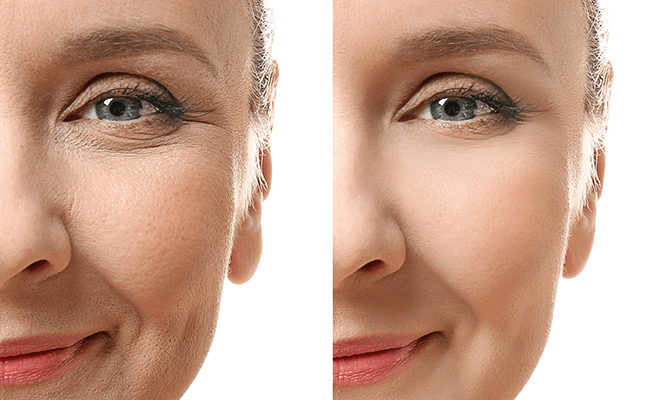 Stemuderm Review 2019 Effective Anti Wrinkle Dermatological Treatment