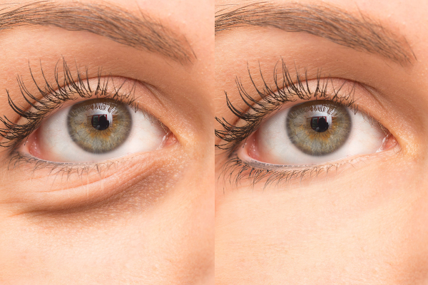eyevge before and after effect