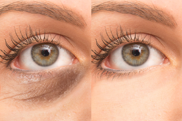 eyevge before and after results