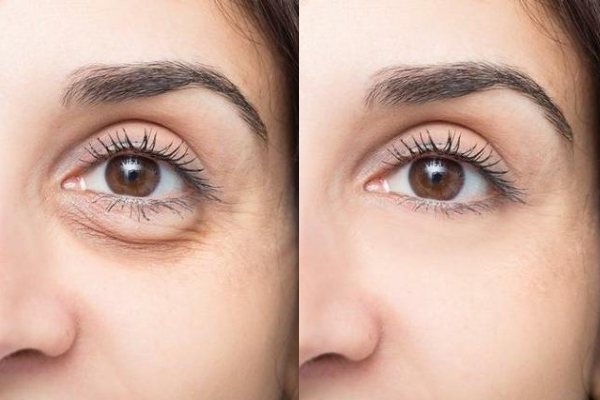 eyevge before and after