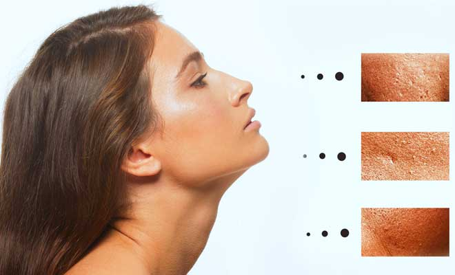 how-to-minimize-enlarged-pores