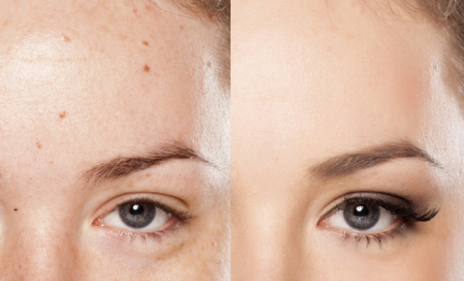 glowpeel-before-and-after-result