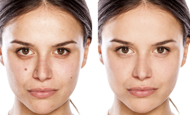 glowpeel-before-and-after