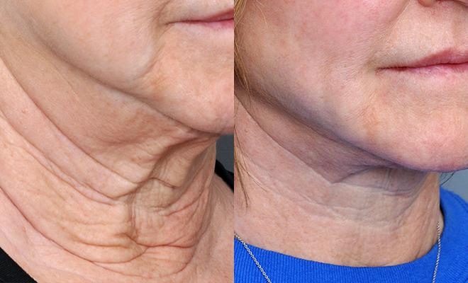 revivatone-before-and-after-results