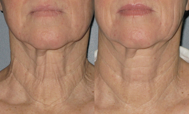 revivatone-before-and-after-result