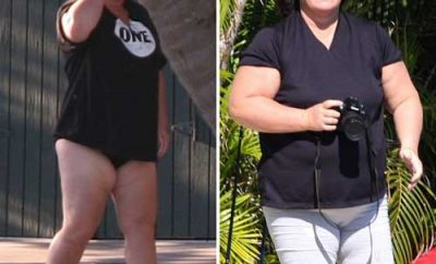 Rosie O'Donnell: A Journey towards Successful Weight Loss Surgery