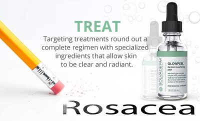 Treating Rosacea with Solvaderm