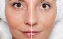 Kiehls Precision Lifting Pore -Tightening Concentrate: Is It Effective?
