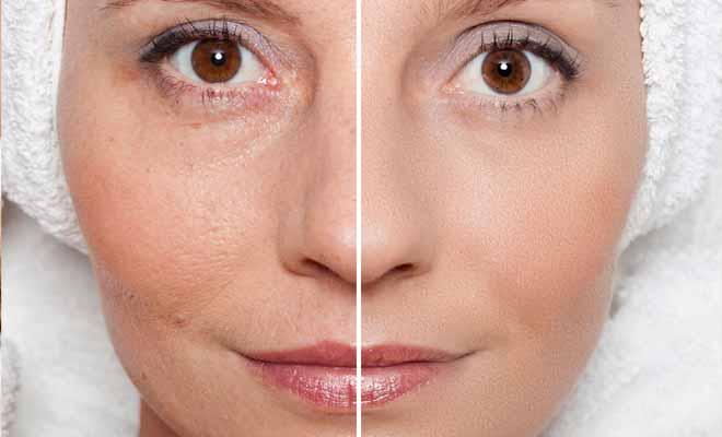 Pore Tightening Concentrate Serum