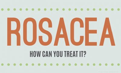 How to Get Rid of Rosacea: 9 Natural Rosacea Treatments