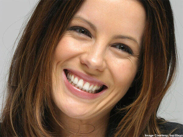 Gummy Smile Celebrities - Kate Beckinsale
