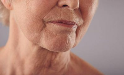 Perioral Wrinkles: Causes, Preventions and Treatments
