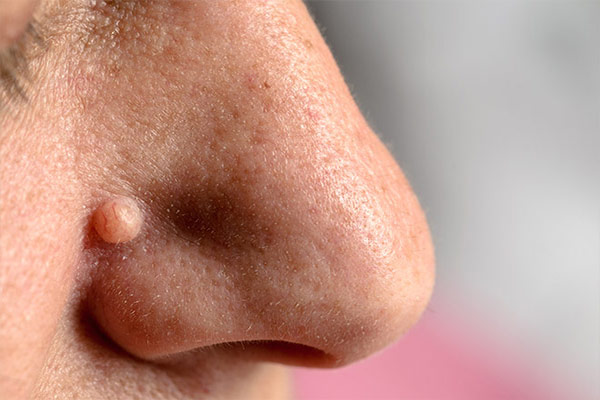 Apple Cider Vinegar For Warts On Face