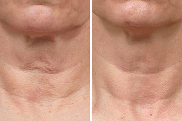 Best-neck-firming-creams