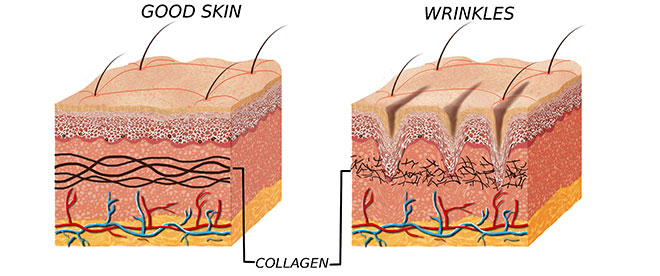 benefits-of-best-wrinkle-creams